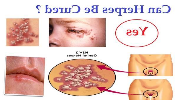 herpes in women