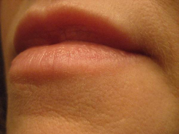 how to know if you have herpes