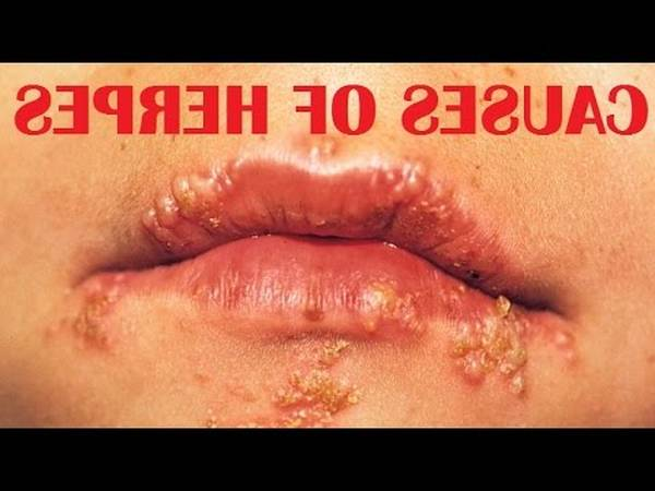 Expert explains: Are cold sores herpes | Our Expert Explains