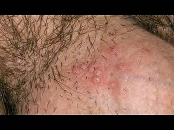 Doctor explains: Herpes on hands | Test & Recommendation