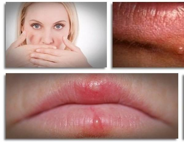 signs of herpes