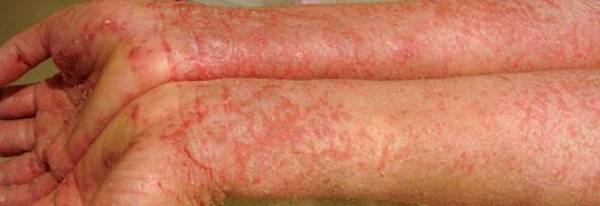 Expert explains: Over the counter psoriasis treatment | Pharmacy