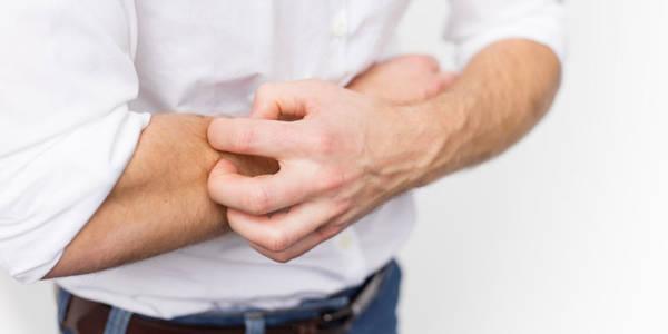 psoriasis on penile head treatment