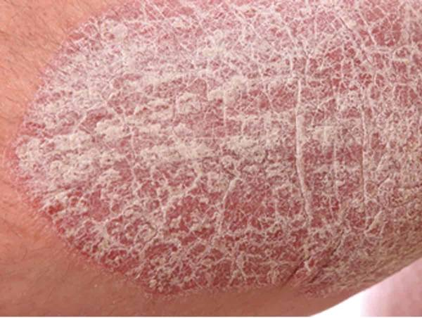 psoriasis hair treatment
