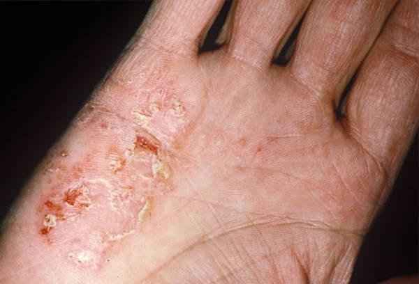 inverse psoriasis treatment