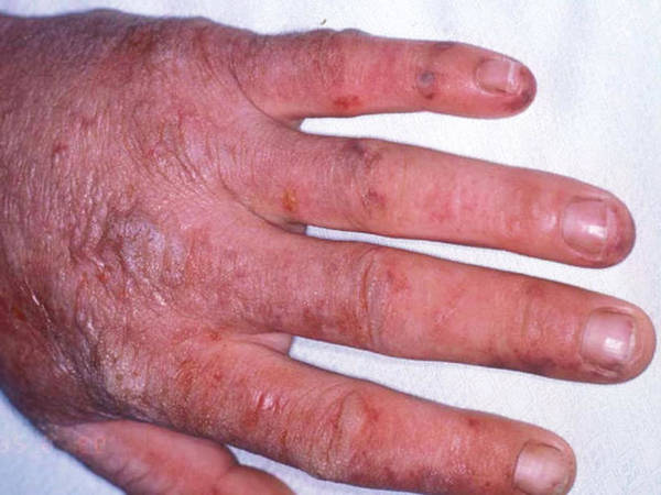 inverse psoriasis treatment over counter