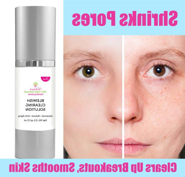 acne treatment walmart