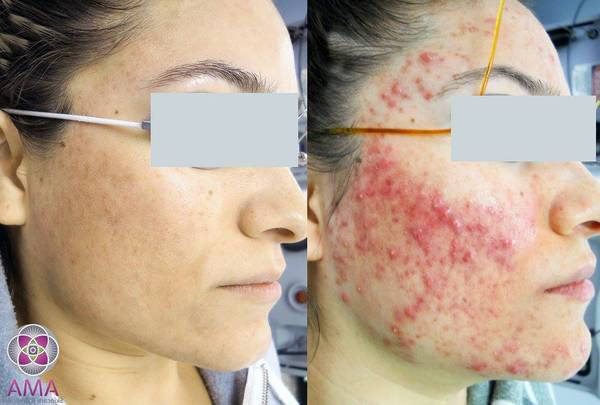 Method revealed: Puriderma acne spot treatment | Best Treatment