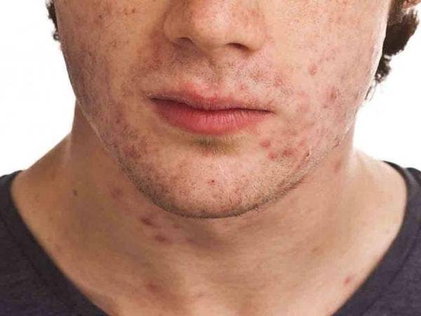 what is the best acne treatment