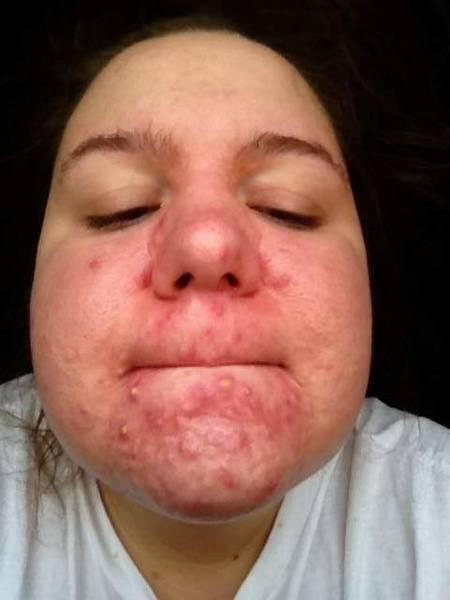 Secrets: Cystic acne treatment youtube | Complete Test
