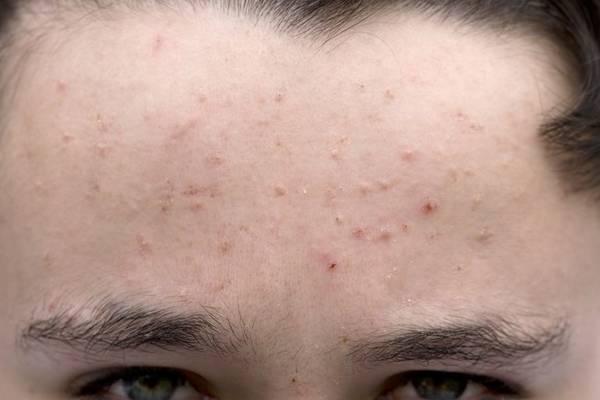 acne treatment youtube