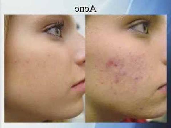 cvs acne spot treatment