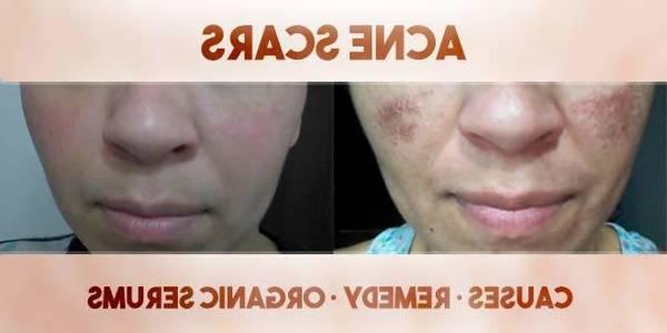 kate somerville eradikate acne treatment