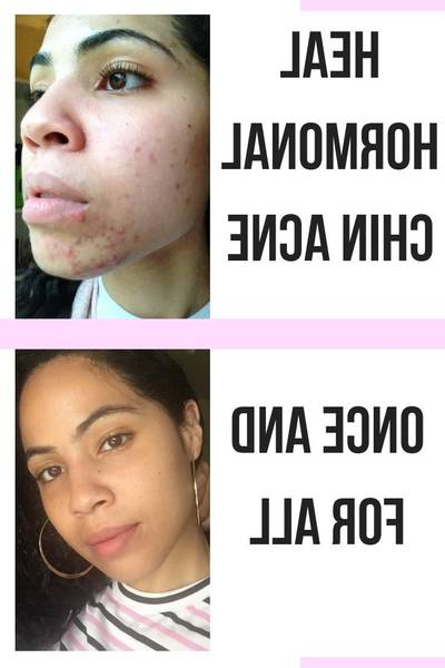 Responses: At home acne spot treatment | Customer Evaluation