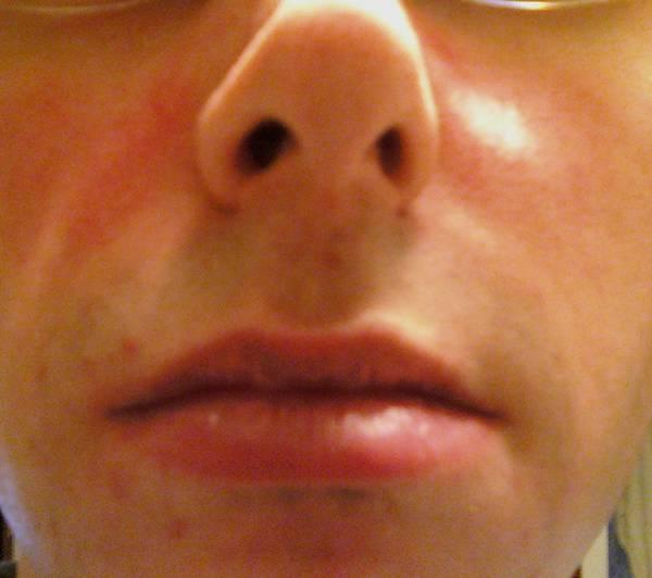 Doctor explains: La roche posay effaclar duo dual action acne treatment | Pharmacy