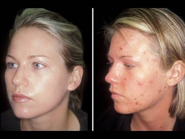 kd 7910 blue light acne treatment