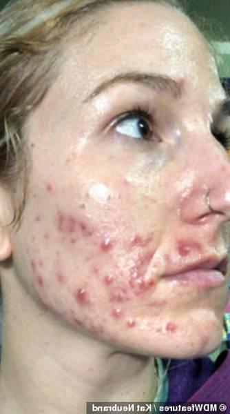acne treatment vlogs 2019