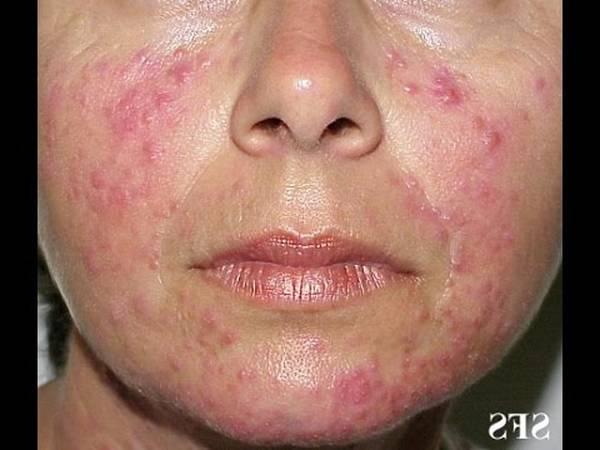 sephora acne treatment