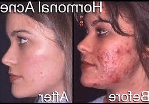 drmtlgy acne spot treatment