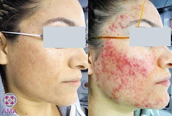 Expert explains: Acne treatment youtube | Review & Prices