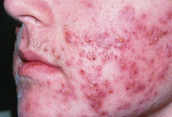 Expert explains: Tea tree oil acne spot treatment | Test & Advice