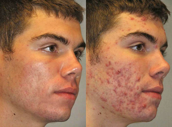 Doctor explains: What is the best acne treatment | Pharmacy
