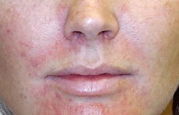 kate somerville eradikate sulfur acne clearing treatment