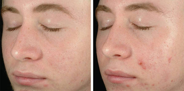 Expert explains: Effaclar acne treatment system | Medical Advice