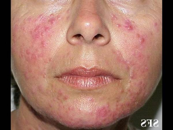 acne treatment youtube channel