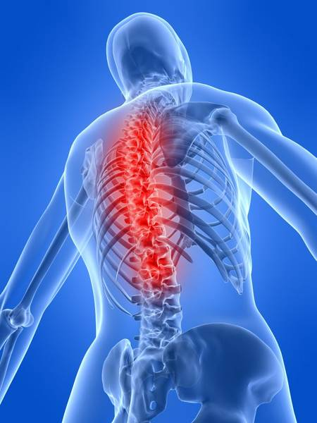 mechanical low back pain physical therapy