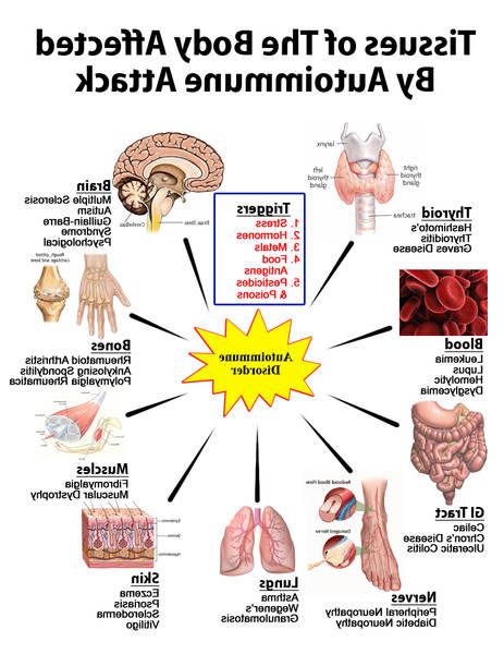 methotrexate rheumatoid arthritis dose