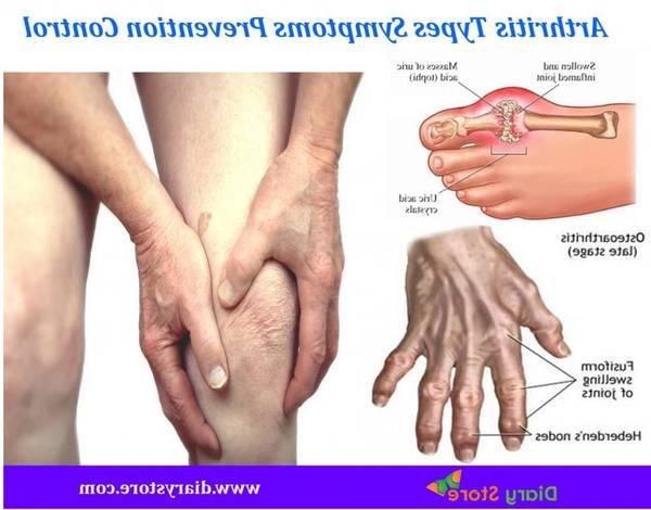 best herbs for arthritis
