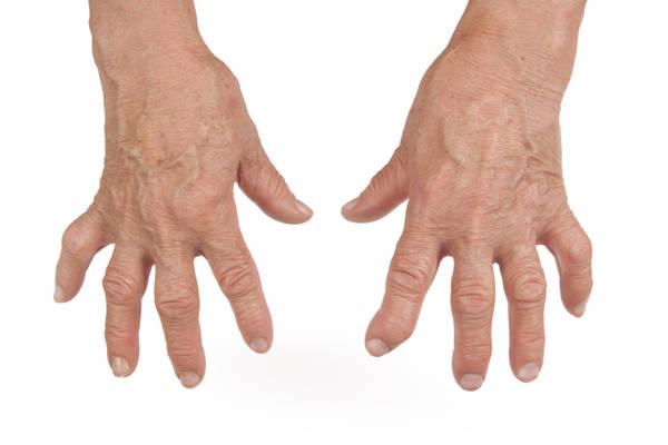difference between rheumatoid arthritis and psoriatic arthritis