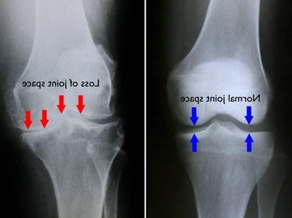 shoulder arthritis icd 10