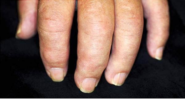 what does arthritis pain feel like