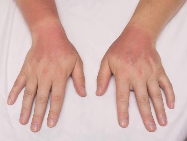 Secret revealed: Rheumatoid arthritis 中文 | Our Expert Explains