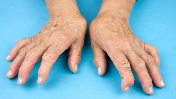 safest psoriatic arthritis treatment