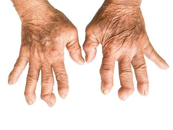 Doctor explains: Foods that fight arthritis | Review & Prices