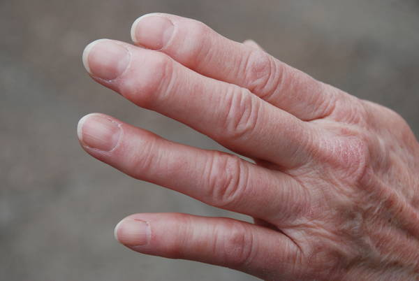 home remedies for arthritis in fingers