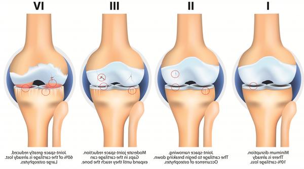 iowa arthritis and osteoporosis center