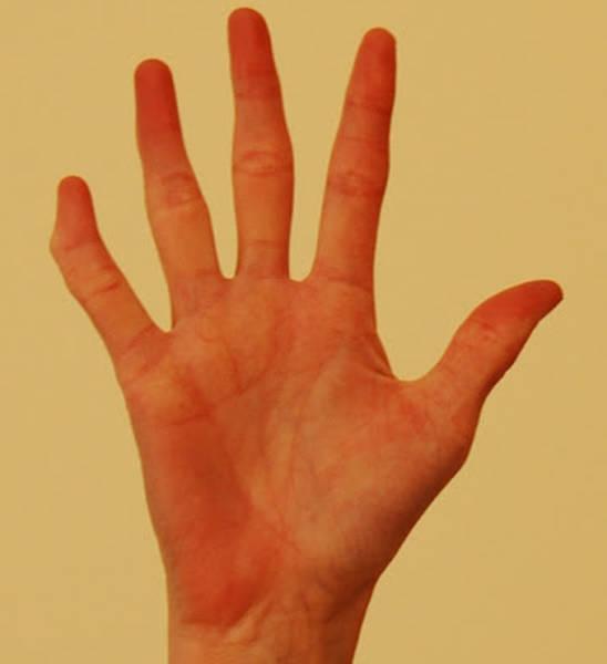 rheumatoid arthritis mayo clinic
