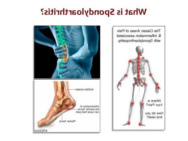 how to fix arthritis