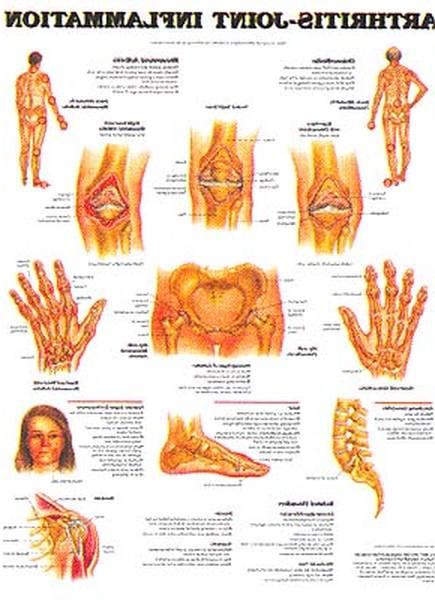 rheumatoid arthritis ribbon