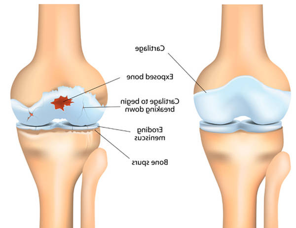 foods that fight arthritis