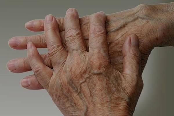 Expert explains: Psoriatic arthritis icd 10 | Complete Test