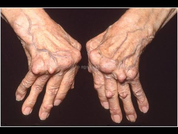 Expert says: How does rheumatoid arthritis start | Complete Test