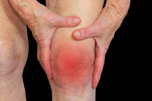 arthritis clinic of stark county