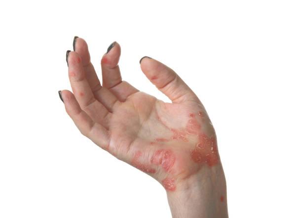 how do you spell rheumatoid arthritis